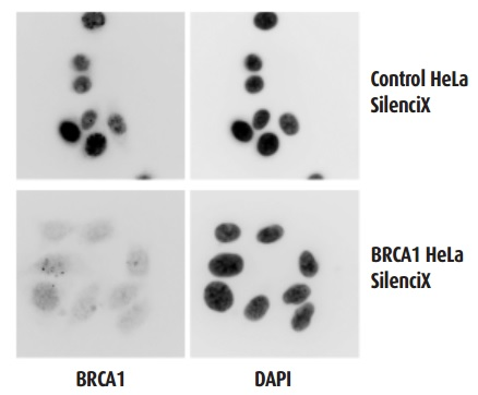 Immunocytochemical staining of stable BRCA1 KD SilenciX cell line