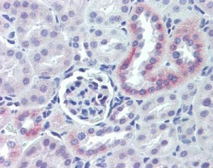 IHC-p with the anti Nestin antibody (cat. nr GTX39578). Source: GeneTex and tebu-bio.