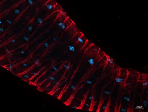 Live Cell Imaging: User results with SiR-Actin & SiR-Tubulin: Drosophila hind gut stained with SiR-Actin.
