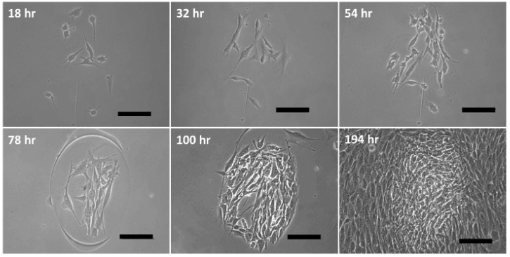 Demonstration of NIH/3T3 cell growth within printed spots over 8 days, images at hour 18, 32, and 54 show the consistent progression of the same spot. Scale bar = 100 μm. Image from Hynes et al., 2014.