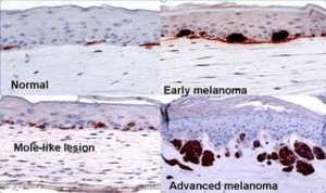 Melanoma Cell Lines from Rockland Inc at tebu-bio.com - Image: Dr. Meenard Herlyn, Wistar Institute, Philadelphia, PA.