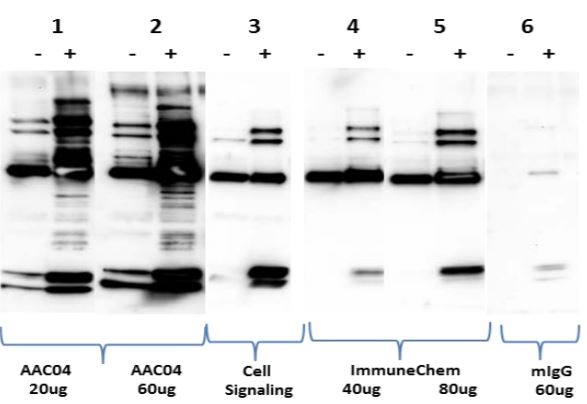 Fig 4: Comparison of acetylated protein enrichment by AAC04 beads and established acetyl-lysine affinity reagents - Cytoskeleton Inc at tebu-bio