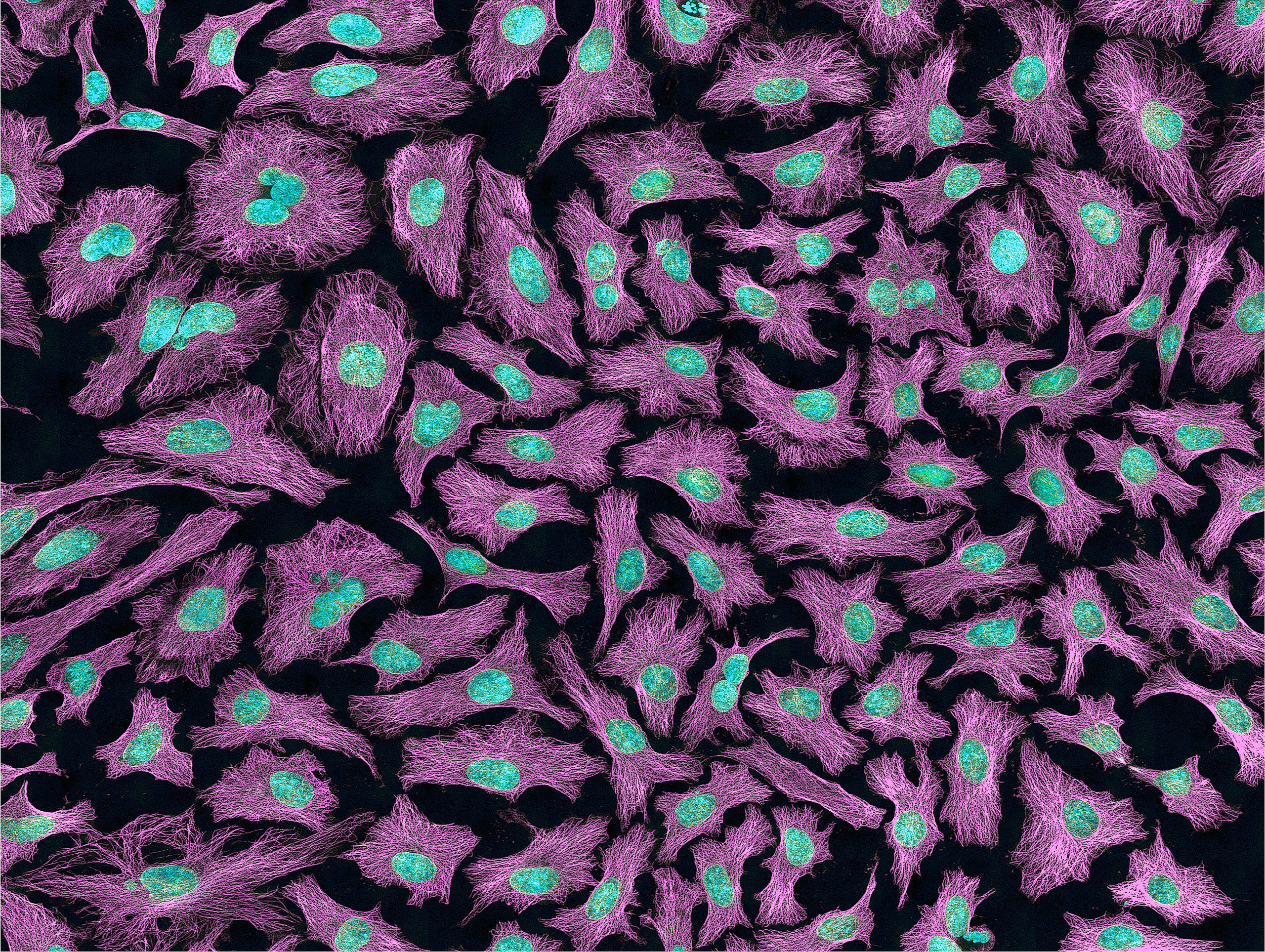 Multiphoton fluorescence image of HeLa cells with cytoskeletal microtubules (magenta) and DNA (cyan). Nikon RTS2000MP custom laser scanning microscope. Image by National Institutes of Health (NIH).