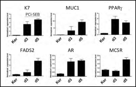 PhenoCell sebocytes with RT-qPCR - Functional markers are strongly expressed after 5 days