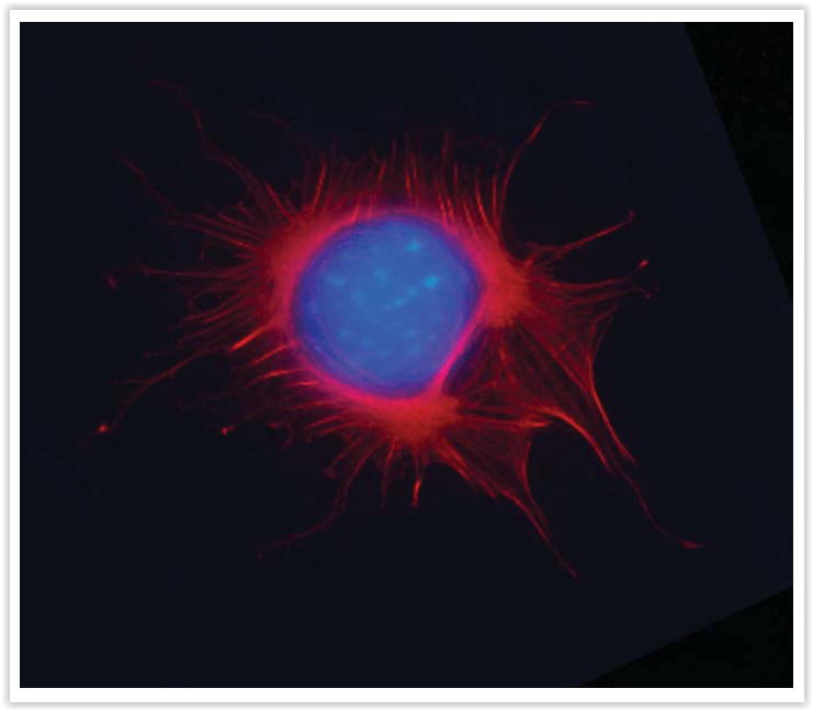 Cystoskeleton #4 - F-actin visualized with Act-Stain™ 670 (PHDN1) in pre-mitotic HeLa cells. Cytoskeleton Inc.