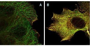 Immunofluorescence Microscopy of Mouse Anti-AKTpS473 antibody using STED nanoscopy to evaluate AKT activation and migration. Tissue: A431 cells. Antigen retrieval: Panel A: serum starved,unstimulated cells. Panel B: serum starved, EGF stimulated for 15 mins. A massive increase in AKT-pS473 activation, as measured by intensity signal, peaked at 15 minutes and was associated with depolymerized tubulin. Staining: Panel A shows STED data (AKT-pS473, red channel) collected simultaneously with confocal signal (a-tubulin, green channel). Upon stimulation of cells with EGF, a rapid activation of AKT is observed (Panel B) along with a coincident change in the tubulin organization (yellow signal), as well as an extensive cell shape-change (cell membrane folding) and accumulation of AKTpS473 at the cell periphery.